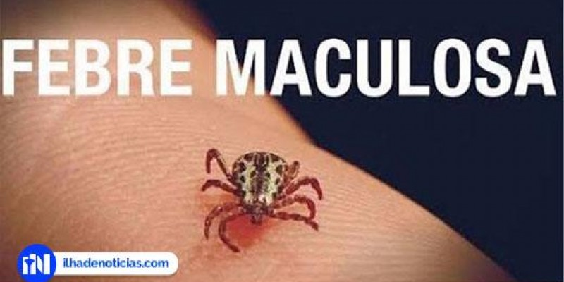 Exame de morador de Ilha Solteira com suspeita de febre maculosa dá negativo