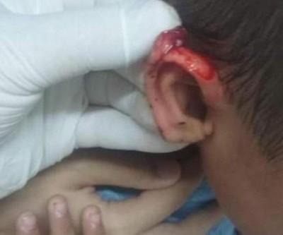 Menino de 3 anos tem orelha cortada com tesoura por colega dentro de escola
