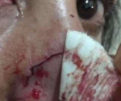 Em Nova Andradina, mulher tem cabelo arrancado e é atropelada pelo marido em discussão