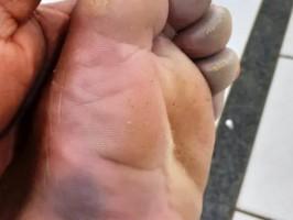 Onze trabalhadores de empresa de celulose de Três Lagoas são atingidos por descarga elétrica