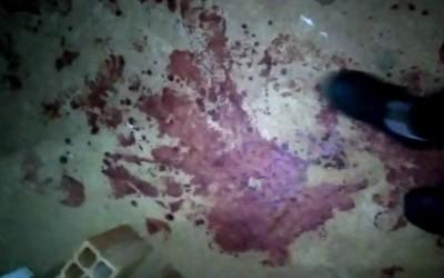 """""""Não falou nada, só atirou"""", diz pedreiro, vítima de tiros disparados por genro"""