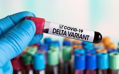 Três casos da variante Delta são registrados em Mato Grosso do Sul
