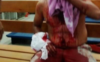 Homem tem rosto desfigurado ao ser ferido com caco de vidro