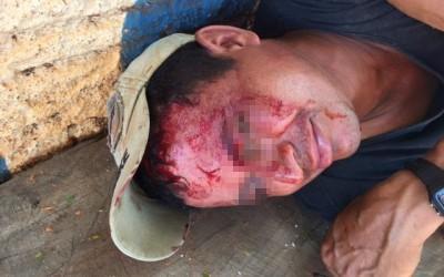 """Amigos de """"cachaça"""" brigam e um deles é ferido com bloco na cabeça"""