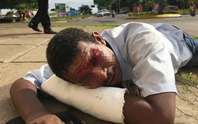 """""""Bebum"""" encontrado com corte na cabeça disse que foi agredido"""