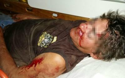 """Ciclista que """"cambaleava"""" na BR-262 é socorrido com traumatismo craniano"""