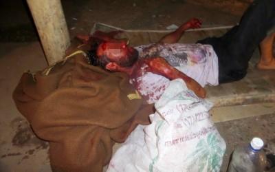 Vítima de espancamento não resiste aos ferimentos e morre no Hospital Auxiliadora