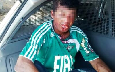 Andarilho é agredido no rosto em tentativa de assalto