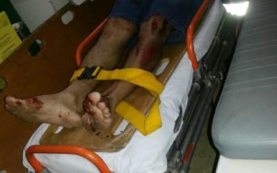 Motociclista fica ferido ao bater em sacos de lixo no Vila Nova