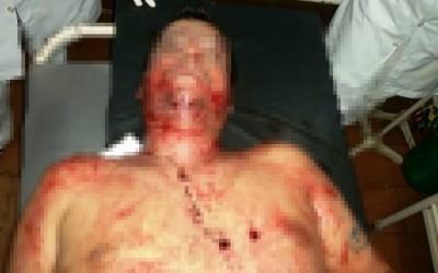 Mais um bandido é morto pela polícia, desta vez, em Caarapó-MS