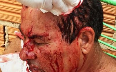Aposentado sofre traumatismo craniano em linchamento
