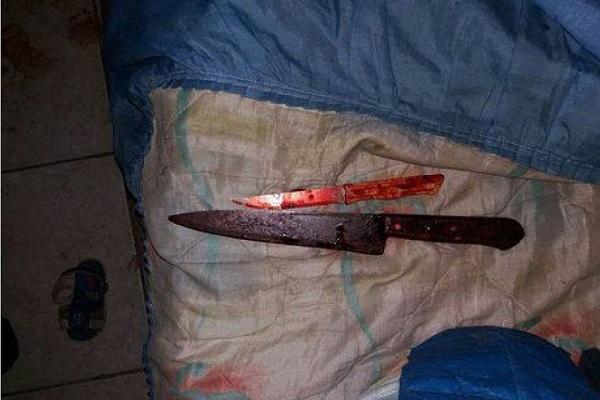 Mulher corta pênis do próprio irmão no Paraná