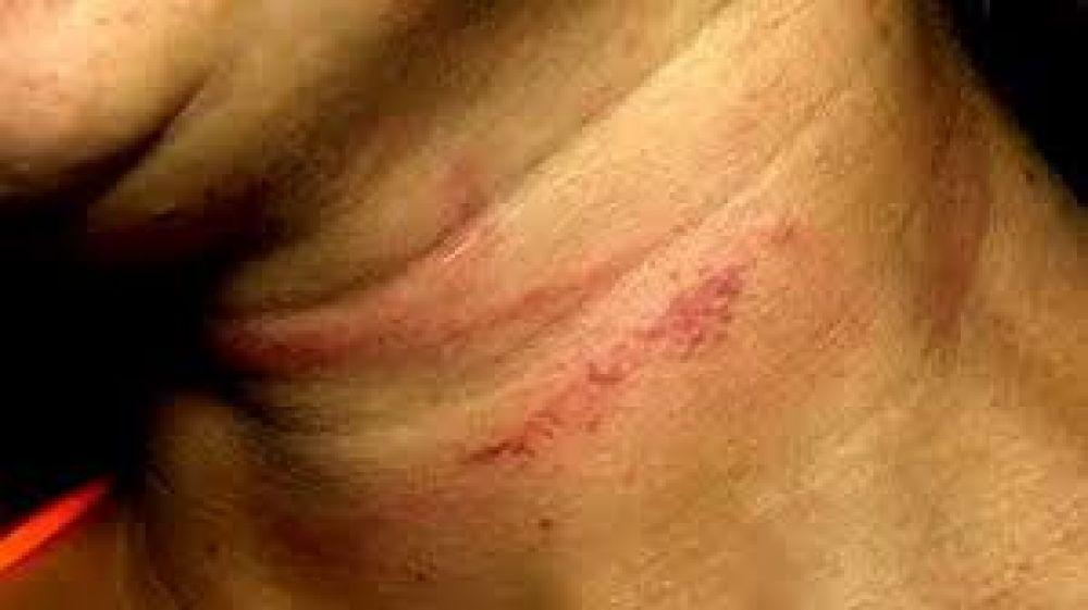 Homem agride e tenta enforcar ex-mulher nas frente das filhas em Três Lagoas