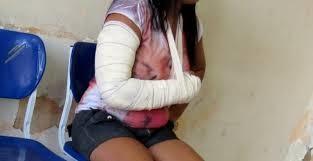Após bebedeira em bar, mulher é espancada pelo marido no bairro Vila Alegre